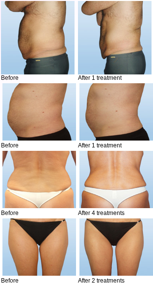 before after fat cavitation